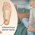 Effective ways to Treat the Painful Plantar Fasciitis - classiblogger