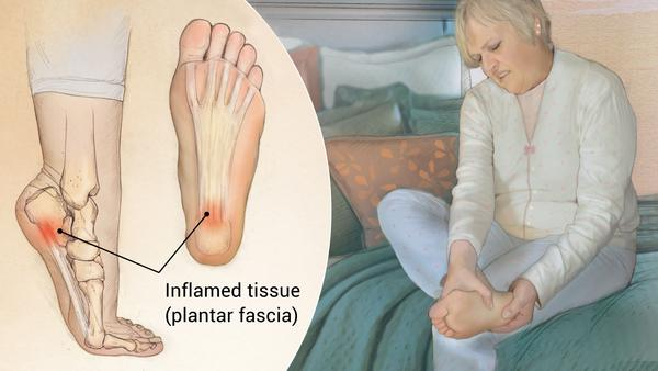 Effective ways to Treat the Painful Plantar Fasciitis